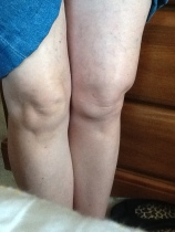 Photo of swollen and bruised legs.
