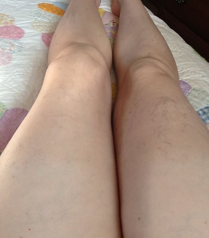 Fat, swollen, bruised legs.